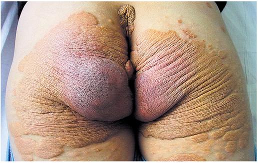 xanthomabuttock1
